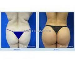 How To Enlarge Hips And Bums +27785167256 Botcho, Breast Skin Lightening Pills